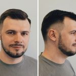 fade-for-receding-hairline